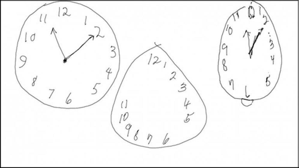 test del reloj