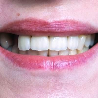 mujer sin un diente