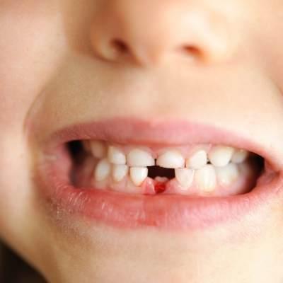 niño sin diente con sangre